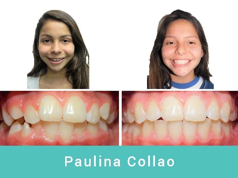 Paulina-Collao